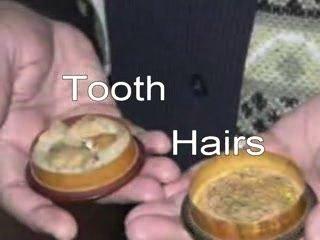 gigi-dan-rambut1
